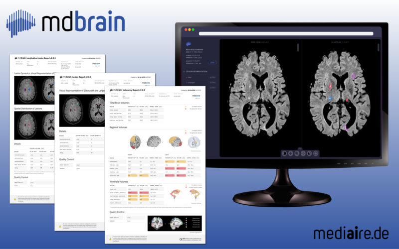 New AI-based software-solution for radiologists boosts diagnosis of dementia