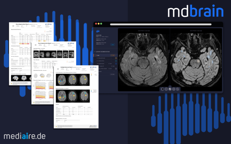 Mediaire launches mdbrain 3.0 – a new tool for early diagnosis of Dementia
