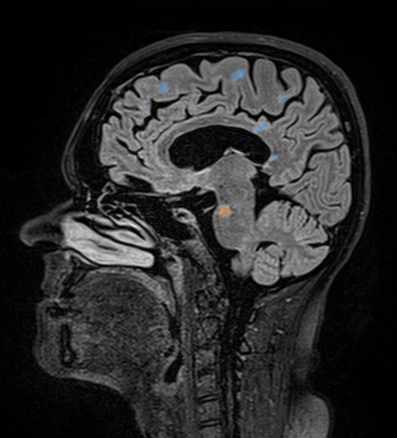 mdbrain - Example 1 lesion overlay in the PACS.