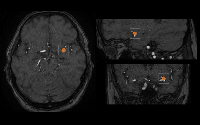 mediaire launches first in-class AI-based neuroradiological assistant with aneurysm detection